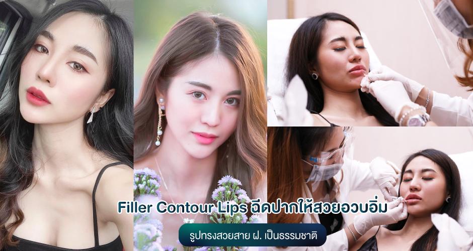 Filler Contour Lips ฉีดปากให้สวยอวบอิ่ม มุมปากยก ไม่ต้องผ่าตัด
